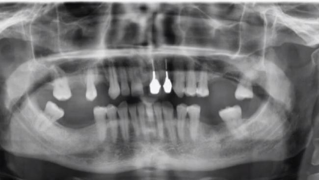 Dave Hughesy Hughes shows off his teeth x-ray on Hughesy, We Have a Problem.