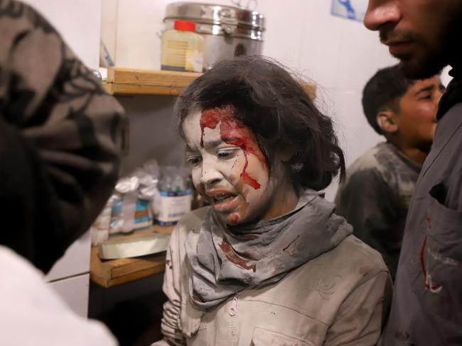 A Syrian girl receives treatment at a makeshift hospital in the rebel-held enclave of Eastern Ghouta. Picture: AFP