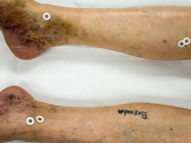 Image shows puncture wounds from failed lethal injections on Doyle Lee Hamm. Picture: Bernard Harcourt