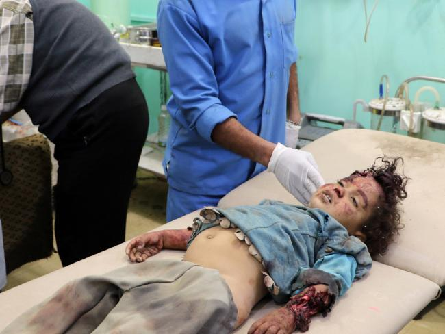 A child injured by an air strike in Yemen, which is seen as both a civil conflict and a proxy war between regional titans Saudi Arabia and Iran. Picture: AFP PHOTO.