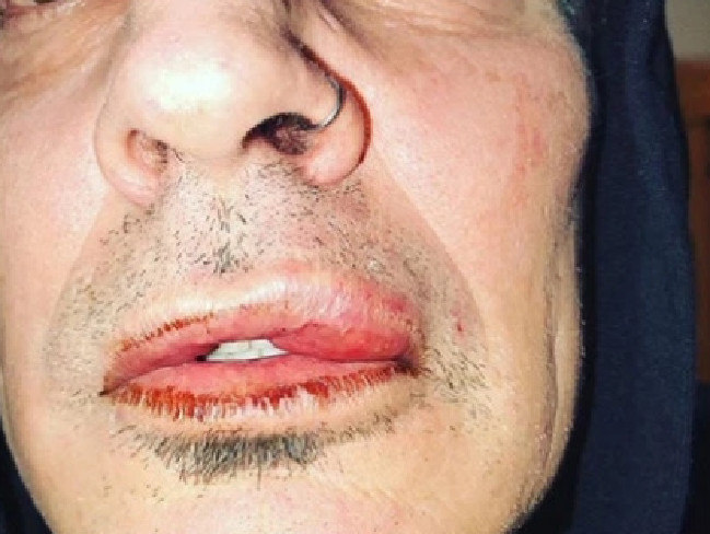 Tommy Lee of Motley Crue posted this photo saying he was beaten up by his son. Picture: Supplied