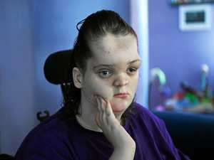 BRAVE TEEN: Tori Punch has a rare condition called proteus syndrome.