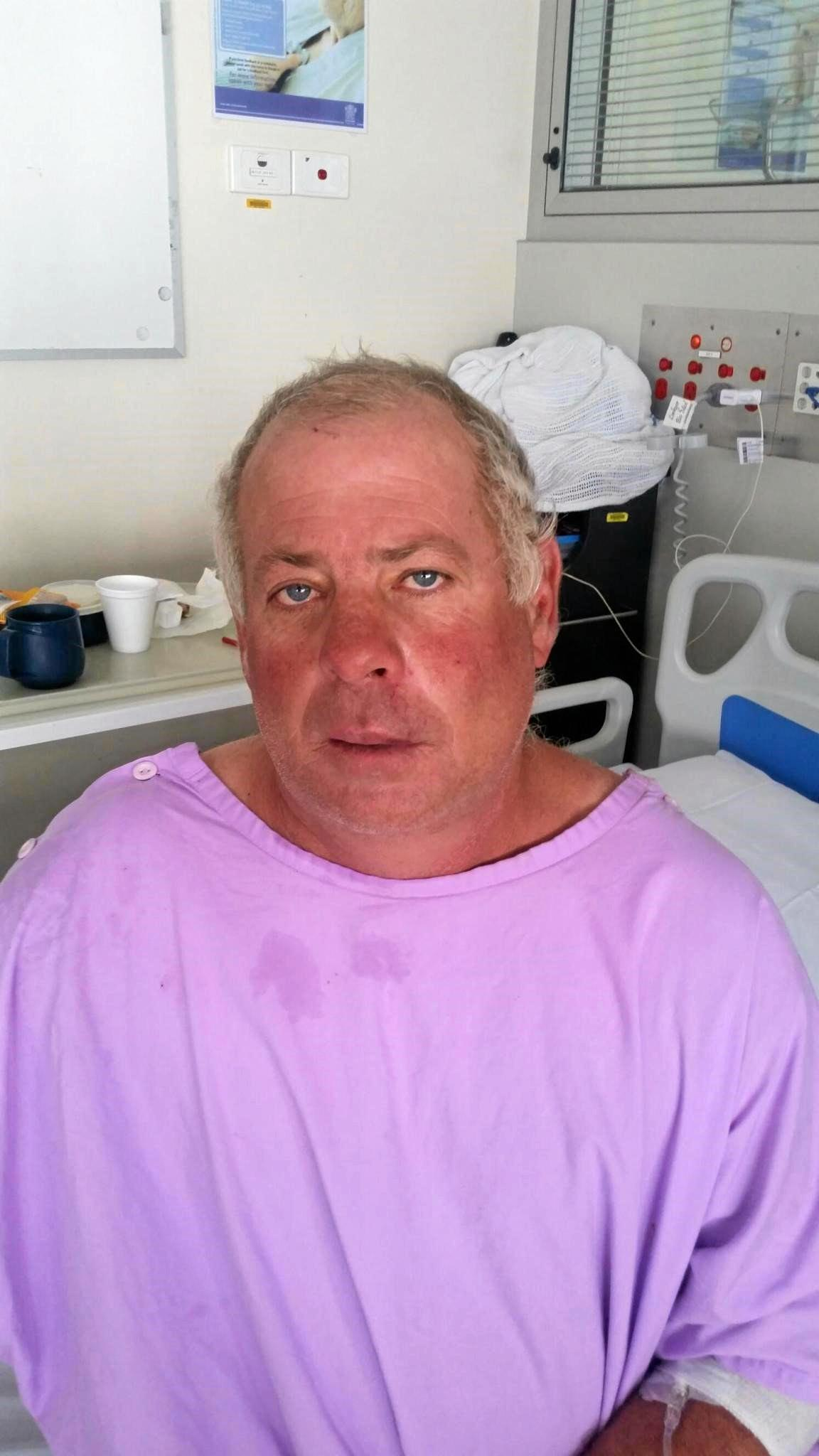 Steve Edmondstone in the Princess Alexandra Hospital in Brisbane after he was assaulted near the Wilsonton Hotel on Friday night.