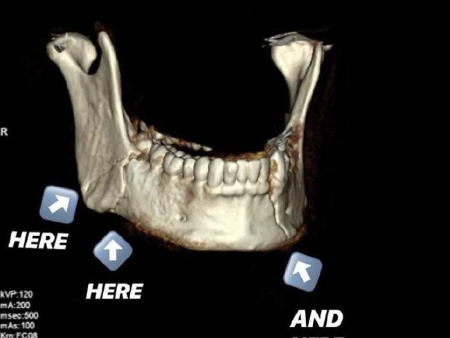Jordan Lahu jaw broken broken jaw