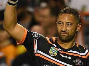 Benji confident of playing despite ruptured ligament