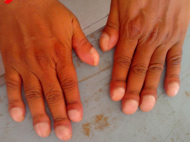 Clubbing of fingers is the oldest known symptom of heart disease. Picture: Sidsandyy/Wikimedia