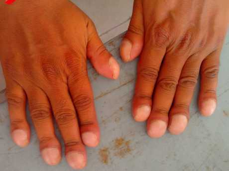 Clubbing of fingers is the oldest known symptom of heart disease. Picture: Sidsandyy/Wikimedia