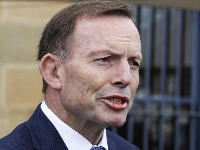 The former PM was left with a busted lip after the attack. Picture: Jim Rice/AAP