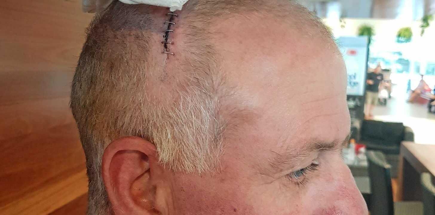 LIFESAVING SURGERY: Steve Edmondstone, 48, in Princess Alexandra Hospital after undergoing brain surgery.