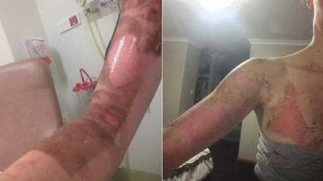 The burnt arms of Perth mother Danika Jones, who claimed her Thermomix exploded and burnt her in the kitchen as she was preparing dinner.