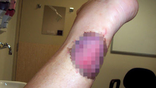 "There is a ""worsening epidemic"" of the Bairnsdale ulcer in Victoria."