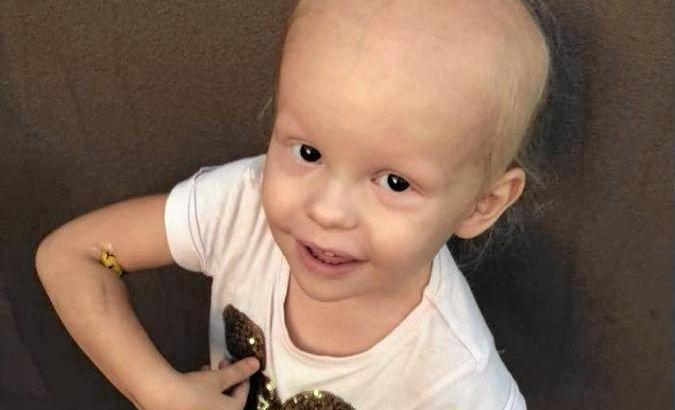 Lacie Christensen, 2, has finally been given a diagnoses of Alopecia Universalis.