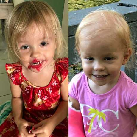 Lacie Christensen, 2, fell sick and lost most of her hair in the space of just a few months, leaving doctors stumped as to what her condition could be. Photo Contributed