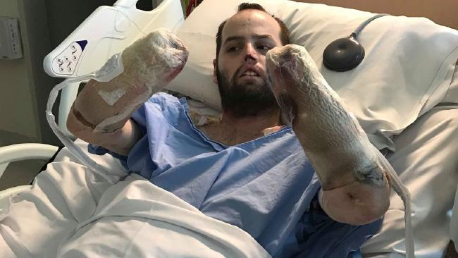 Jake Clift in hospital following his amputations. Picture: Gofundme Perth man warns people of meningococcal