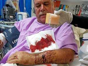 GRAPHIC IMAGES: Man snaps arm after colliding with roo