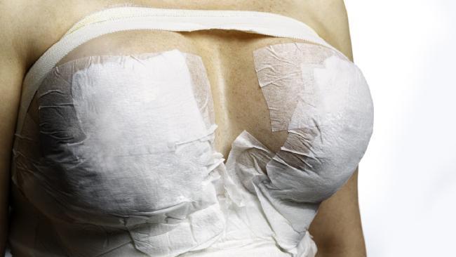 'My boob job nearly killed me'