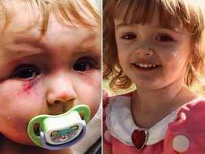 Bashed toddler's road to recovery
