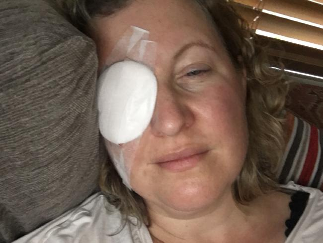 Amanda was incredibly frustrated by just how much the eye injury was impacting her life.