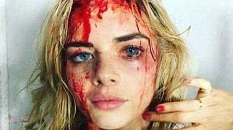 This photo of Samara Weaving covered in fake blood was circulated online. Picture: Twitter/Conservative Nation For Page13