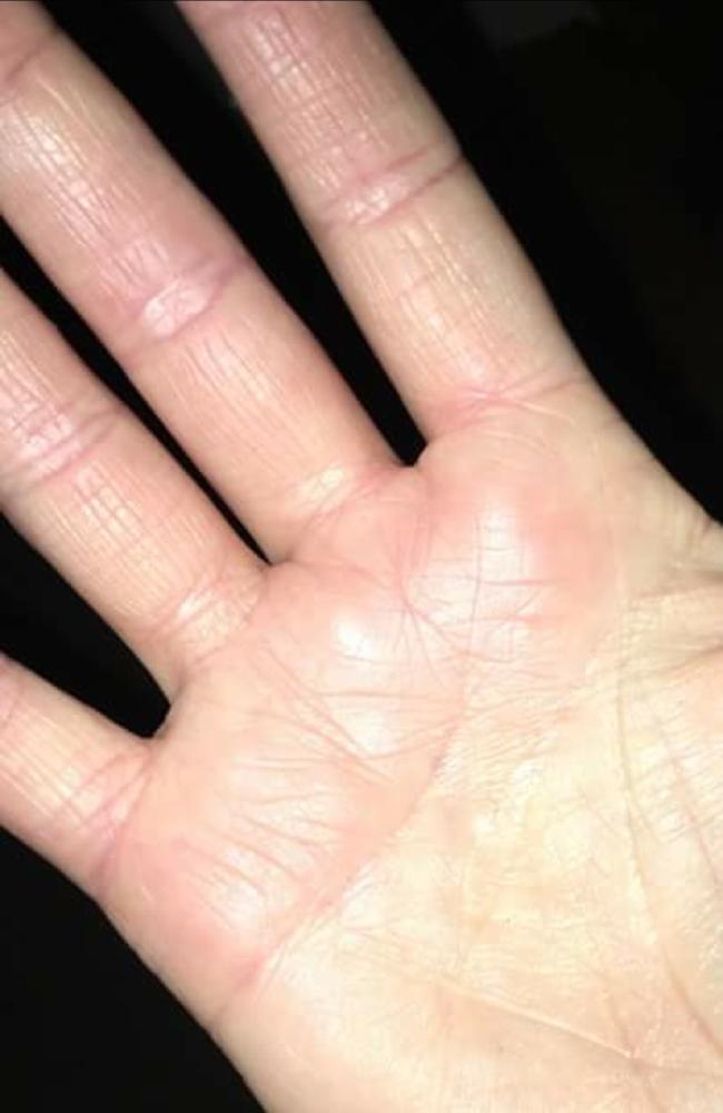 Cherie's hand after using the Moo Goo cream.