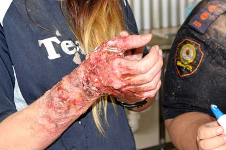 WOUNDED: Victims of the staged explosion suffered burns, shock, hearing loss and cuts.