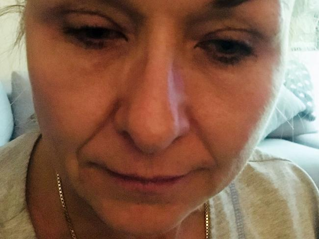 Theresa Lynch went to the doctor after her eyes started causing her trouble. Picture: Caters