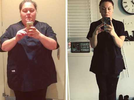 Amanda Nauffts before and after weight loss surgery.