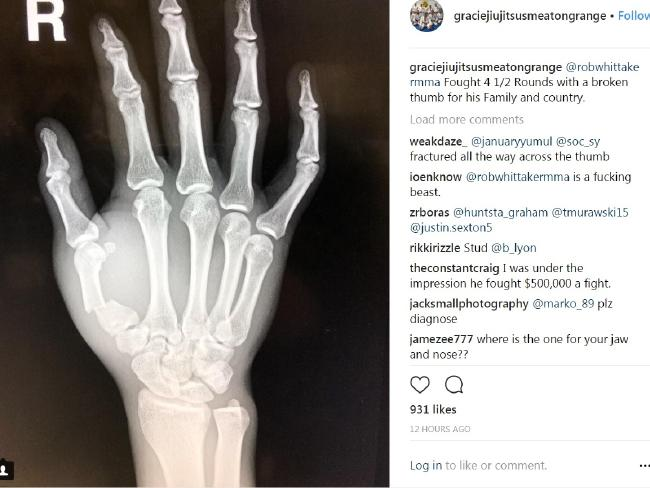 Robert Whittaker's thumb was in a bad way.