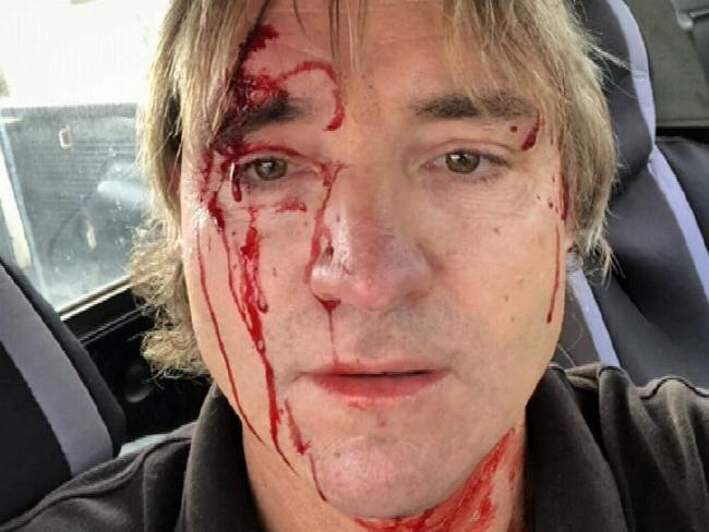 Rodney was covered in blood after the road rage incident.