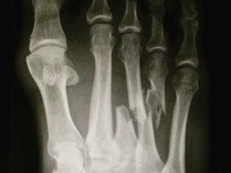 X-ray of Kelly Slater's broken foot in an image taken from his Instagram account.