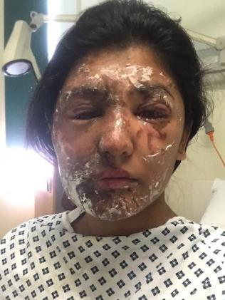 Resham Khan's injuries following the acid attack.
