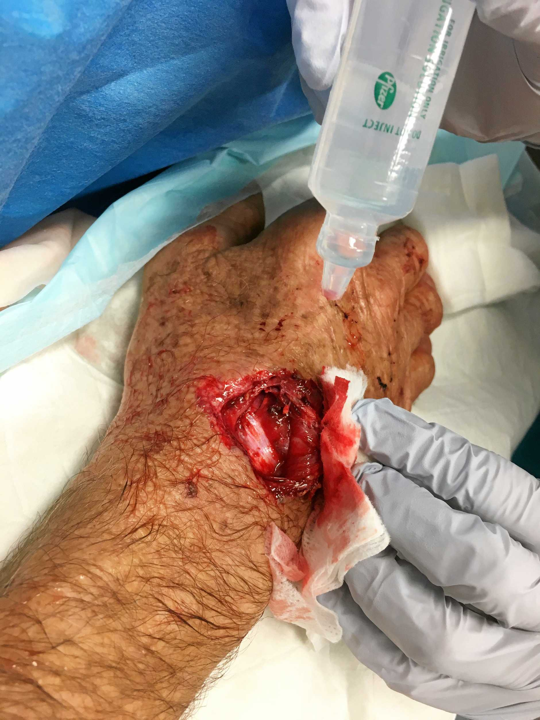 TRAUMATIC: Pete Wood sustained a deep gash to his right wrist after a surf rage incident at The Pass last Friday, June 22.