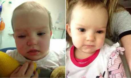 Amaia's eye in hospital and in its healing phase. Source: supplied.