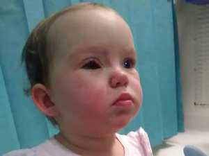 Toddler nearly loses her eye in Kmart accident