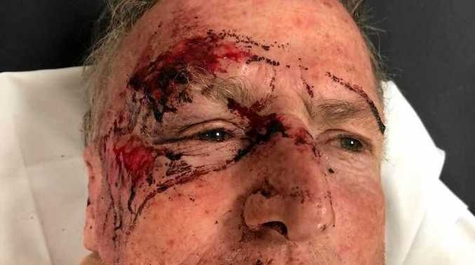Ray was left bleeding in the Stockland carpark.