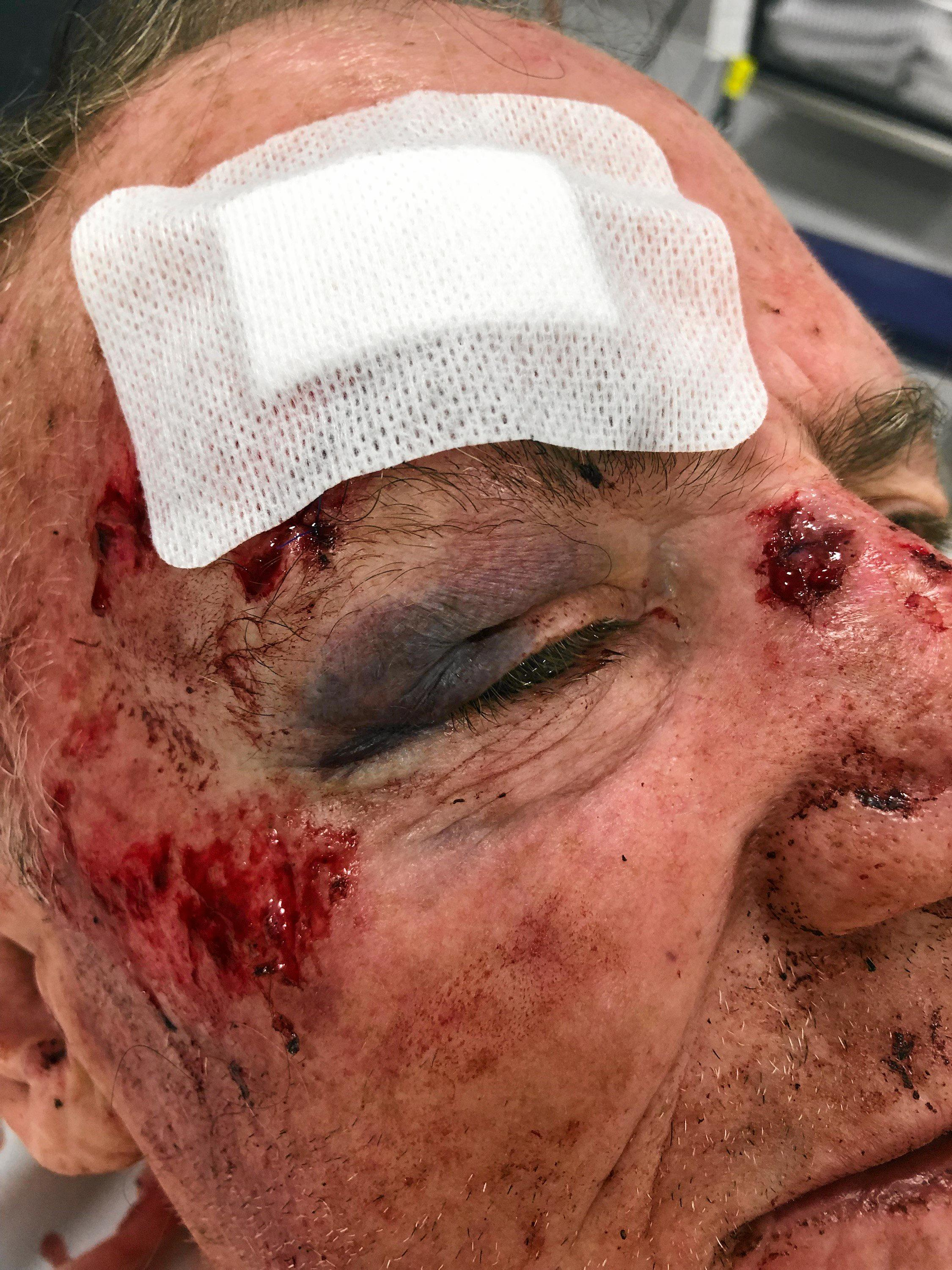 Ray was allegedly hit in the back of the head while working in Caloundra early Wednesday morning