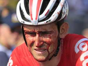 Tour de France takes bloody toll