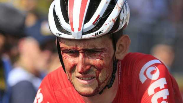 Belgium's Tiesj Benoot crosses the finish line with blood running down his face after crashing during the fourth stage of the Tour de France. (AP Photo/Peter Dejong)