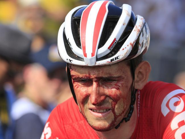 Belgium's Tiesj Benoot crosses the finish line with blood running down his face