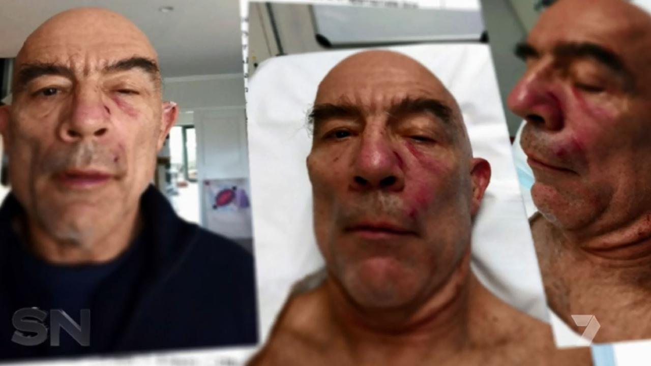 Andrew Nerlich was punched 15 times by Chances Moana in a road rage incident. Picture: Channel 7.