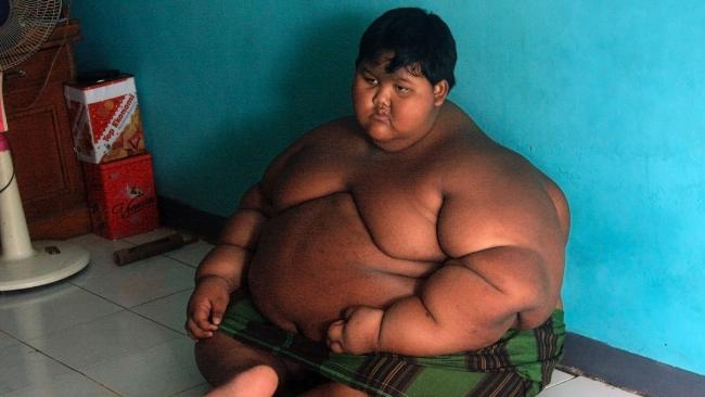 Arya Permana from Karawang, West Java was 192kg he has now lost 83kg. Picture: AFP Photo/Mahendra