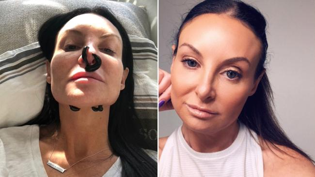 Shari Manchon fixed her botched nose job with leeches.