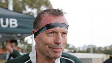 Former prime minister Tony Abbott following his rugby return.