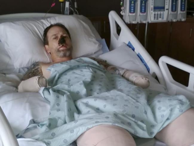Greg Manteufel lays in his hospital bed at Froedtert Hospital in Milwaukee. Picture: Dawn Manteufel