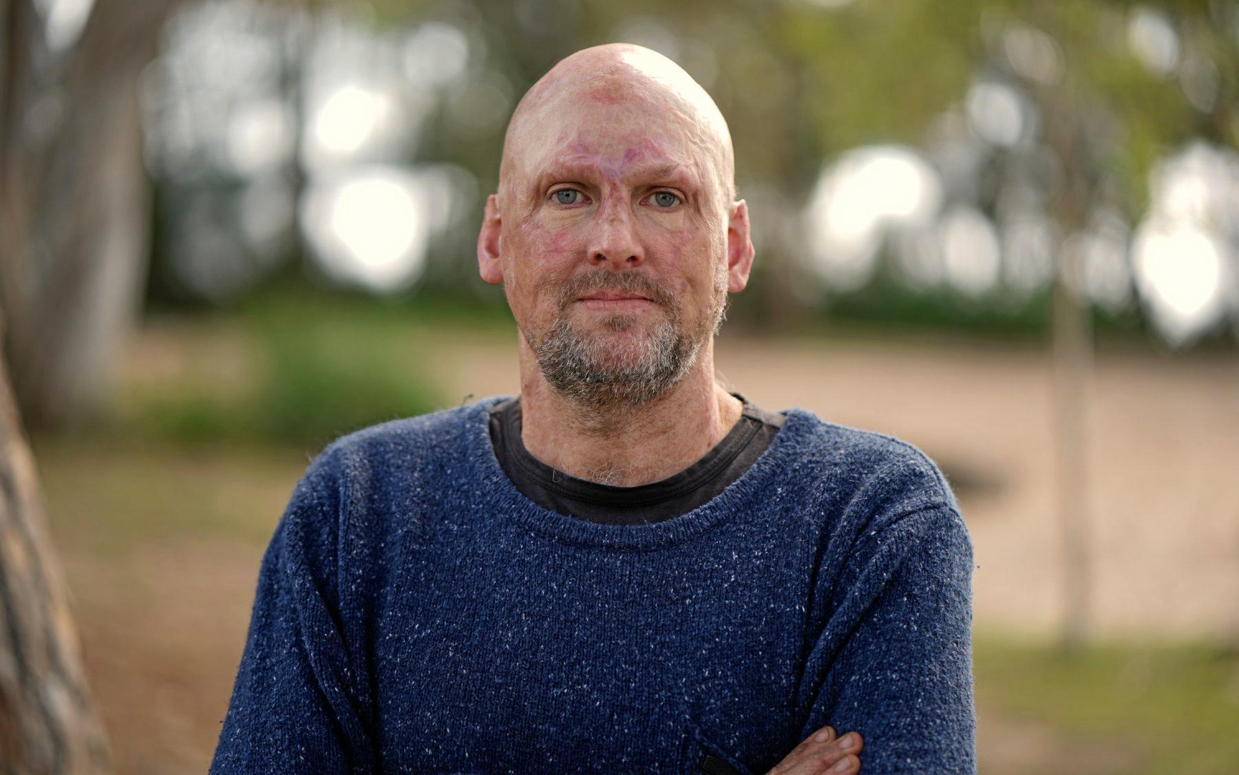 Matt Golinski.