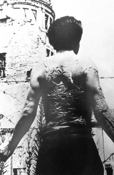 This photo shows a man whose back has been totally burnt during the atomic bomb dropped by the US on Hiroshima.