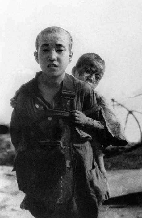 This, photo dated August 10, 1945, shows two brothers who survived the atomic bombing of Hiroshima four days earlier.