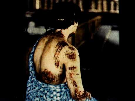 A woman shows scars of from the atomic bomb at Hiroshima. Marks show the pattern of kimono she was wearing with dark coloured material absorbing more radiation and causing deeper burns. Picture: Gonichi Kimura.