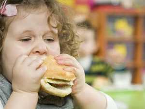Why obese kids cost taxpayers millions