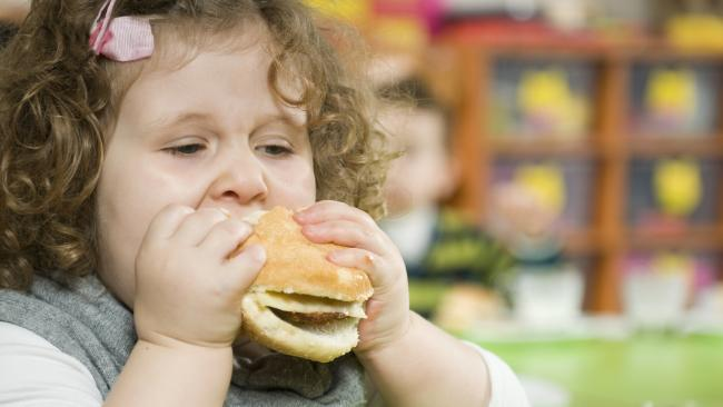 Children with obesity face a higher risk of other serious health conditions.